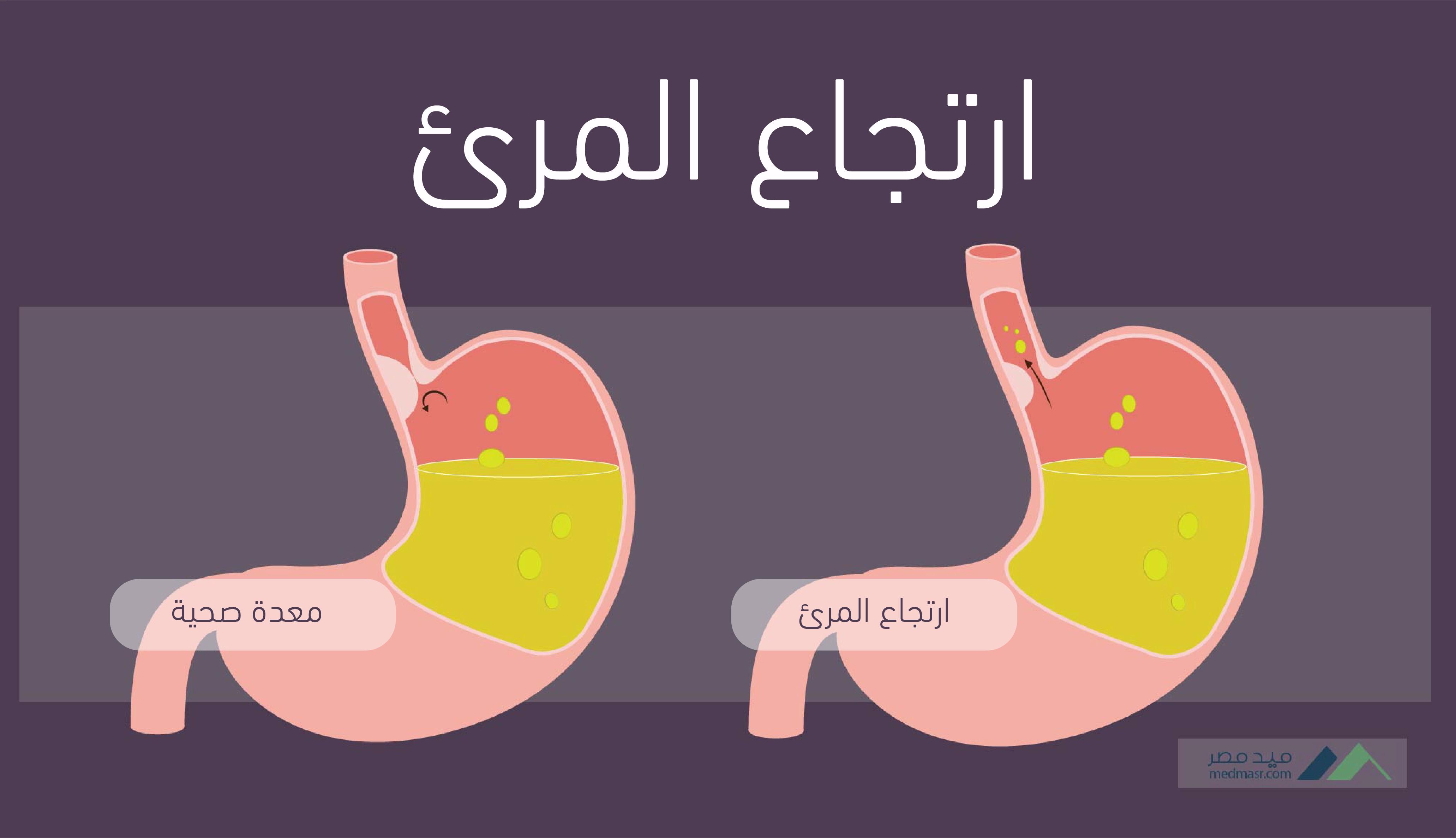 ارتجاع المرئ الحموضه التهاب فم المعدة أسبابها وعلاجها علاقة ارتجاع المرئ بسرطان المرئ
