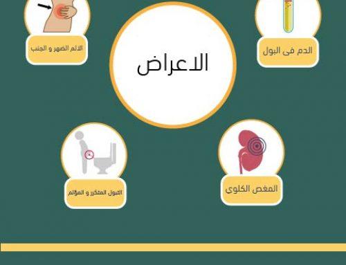 حصوات الكلى (Infograph)