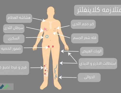 متلازمة كلاينفلتر Klinefelter syndrome