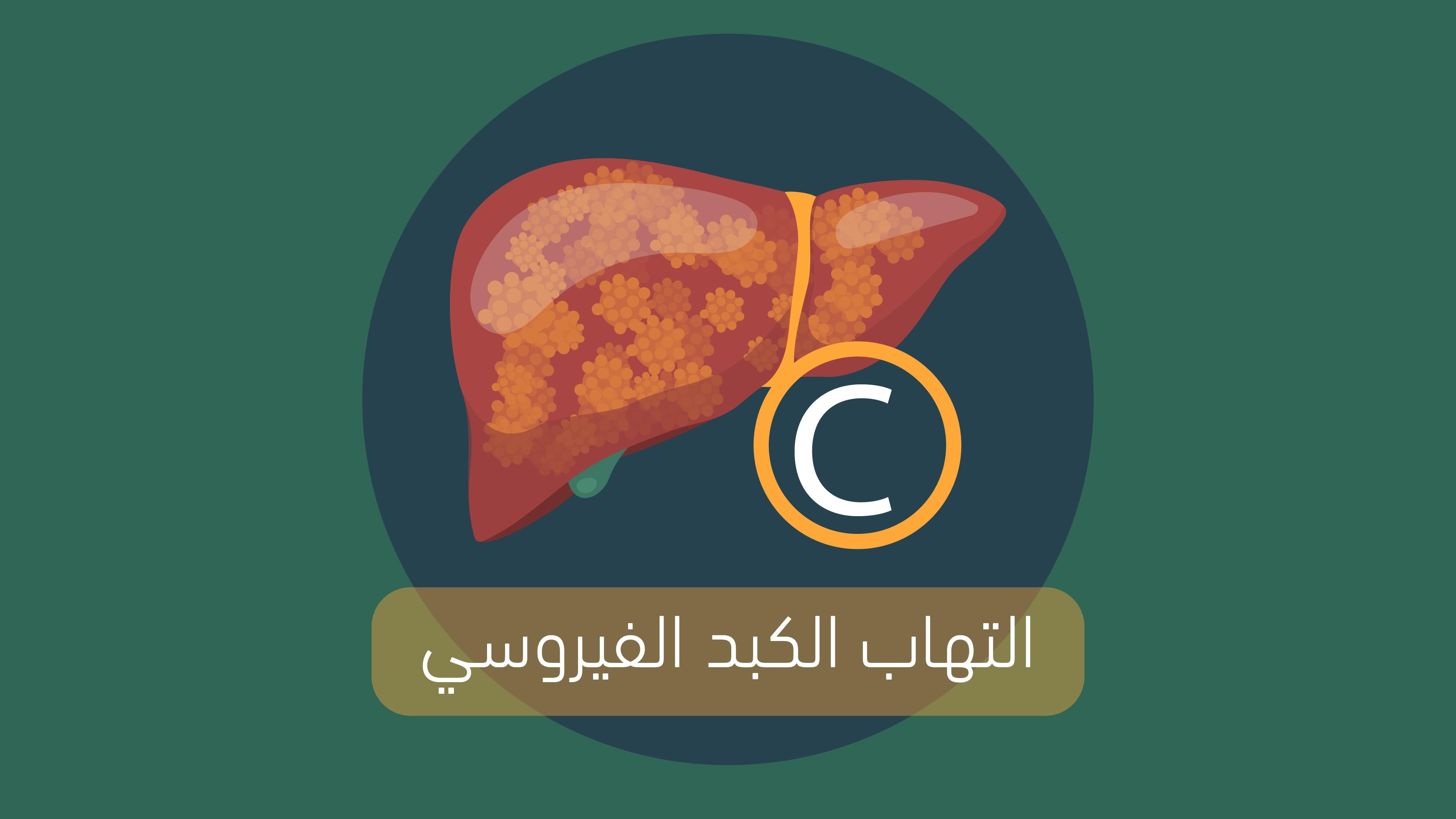 التهاب الكبد الوبائى الفيروسى سى