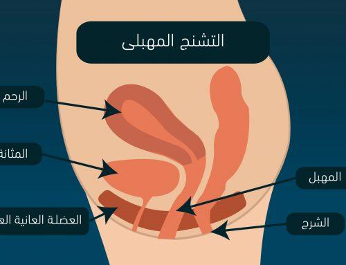 التشنج المهبلي Vaginismus